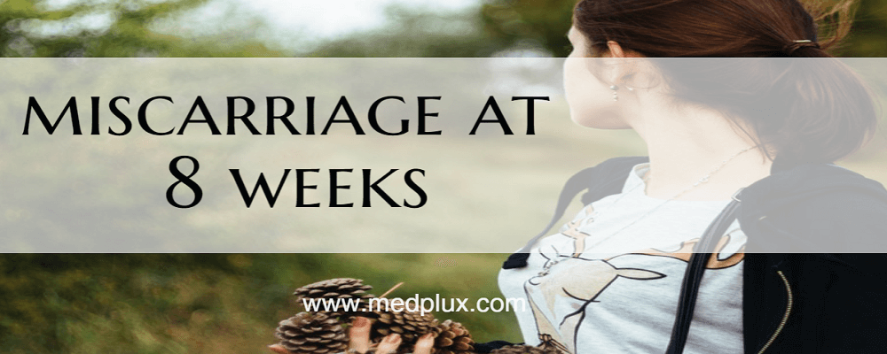 miscarriage at 8 weeks symptoms signs causes risk
