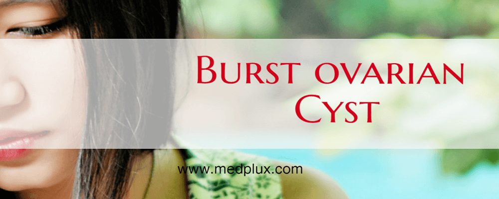 Burst Ovarian Cyst Causes, Sign, Symptoms, What To Do If Cyst Bursts