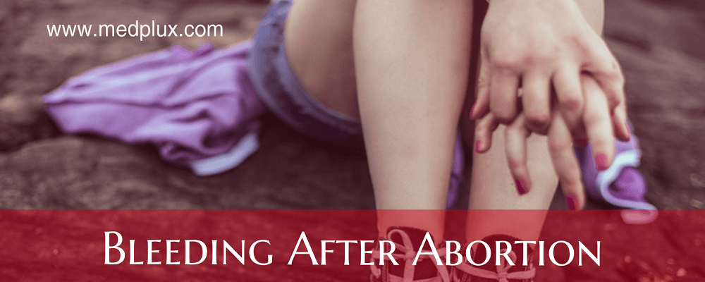 Bleeding After Abortion How Long Does It Last Easy Ways To Stop It