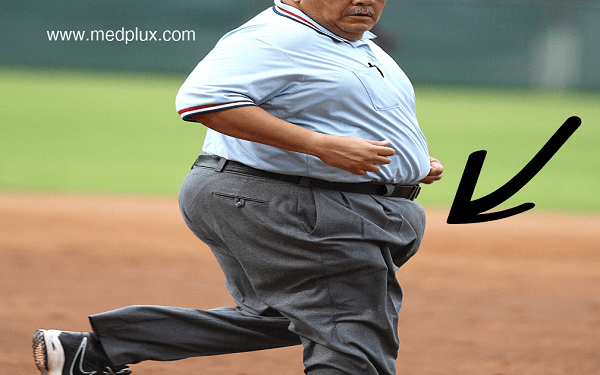 What is a FUPA and (10 Easy) Ways to Get Rid of it