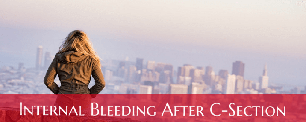 Internal Bleeding After C-section Signs, Treatment